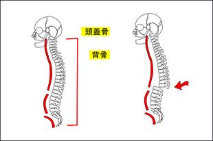 脊椎の生理的湾曲が無くなる。