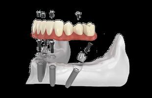 festsitzender Zahnersatz an Stelle von Totalprothesen gemacht werden.