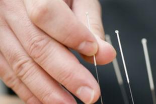 Arzt setzt Akupunkturnadeln