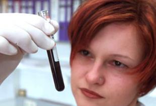 Laborangestellte prüft Flüssigkeit in einem Reagenzglas