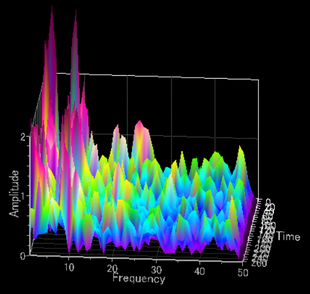 エメラルド両極瞑想法では、瞑想前・瞑想中・瞑想後の脳波を脳波ニューロフィードバックの手法で、3D表示し、解析する。また、クリニック独自の指標でも解析する。
