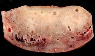 図5 子宮腺筋症に犯された子宮断面 (wikipediaより抜粋)