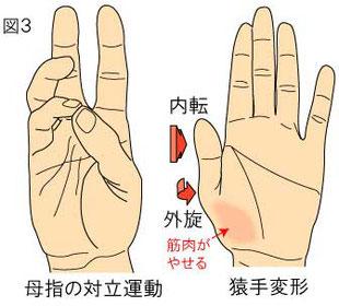 母指対立運動 猿手