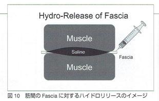 筋間のFasciaに対するハイドロリリース