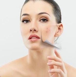El acné y las emociones