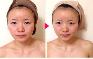 美顔鍼の効果 施術後の写真