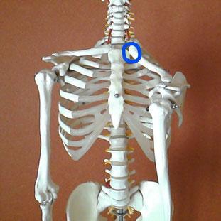 左肩が下がった骨格模型の写真