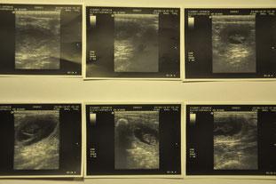 Ultraschall an Tag 29 der Trächtigkeit