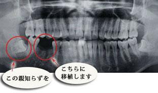 自家歯牙移植1