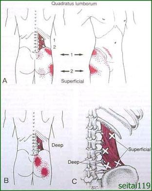 股関節の痛みトリガーポイント療法
