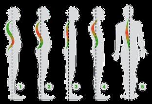 ginnastica correttiva fisioterapia Viterbo