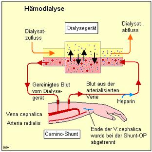 Nierenschaden Symptome