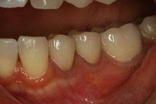 薄い歯茎 歯茎再生