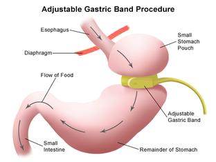 adjustable gastric band illustration