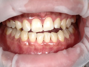 八戸市 ホワイトニング 安い くぼた歯科