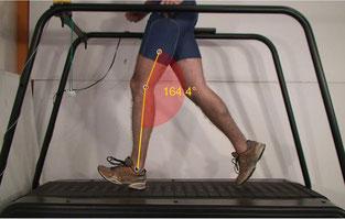 klinische Ganganalyse, Laufband Analyse, Laufbandanalyse
