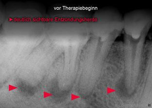 mikroskopische Wurzelkanalbehandlung Darmstadt Dieburg
