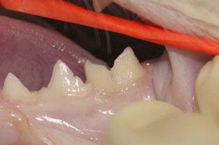 プラークで歯の表面が凸凹しています。