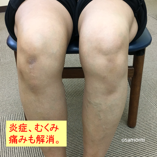 オサモミ式整体 浮き指 ひざ痛