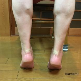 オサモミ整体院 後脛骨筋 アーチアップ
