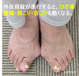オサモミ整体院 外反母趾 腰痛 ひざ痛