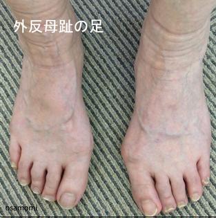 オサモミ整体院 後脛骨筋痛 外反母趾