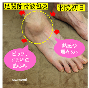 オサモミ式整体 足首痛