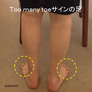 オサモミ整体院 後脛骨筋 Toomanytoeサイン