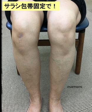 オサモミ整体院 変形性膝関節症 サラシ包帯固定