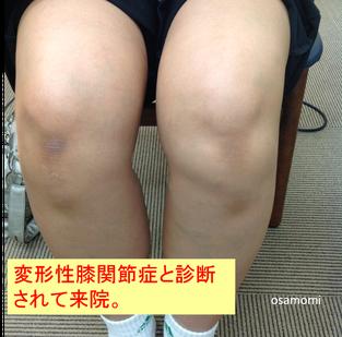 オサモミ式整体 ひざ痛