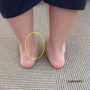 オサモミ整体院 後脛骨筋腱炎