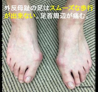 オサモミ整体院 外反母趾 足首痛