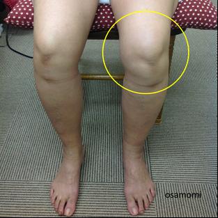 オサモミ整体院 変形性膝関節症