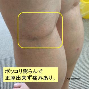 オサモミ整体院 慢性的なひざ痛 ベーカー嚢腫