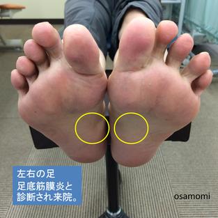 オサモミ整体院 足底筋膜炎