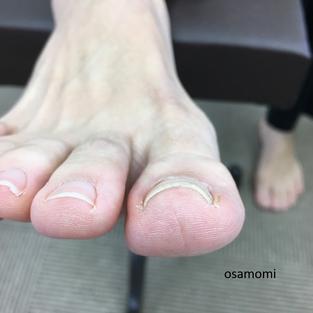 オサモミ整体院 巻き爪
