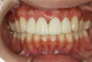 歯茎がそろわない状態