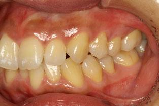 歯並びを横から見た