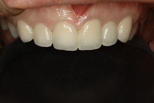 テトラサイクリン変色歯の治療