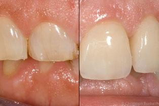 Bisshebung bei abgeknirschten Zähnen mit Keramikkronen