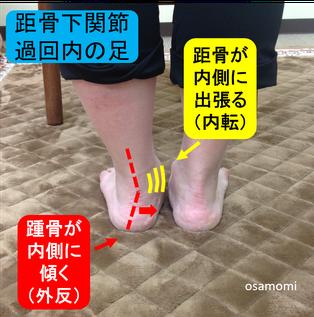足底腱膜炎 昭島市のオサモミ整体院。