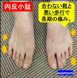 内反小指、合わない靴、悪い歩行は、昭島市のオサモミ整体院。
