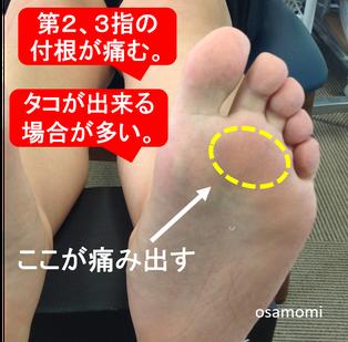 中足骨頭部痛の解消は、昭島市のオサモミ整体院。足ケアのプロフェッショナル