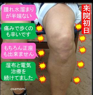 膝痛のスペシャリスト、昭島市のオサモミ整体院。サラシ包帯固定