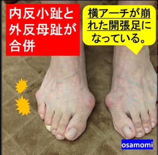 内反小指、外反母趾、開張足は、昭島市のオサモミ整体院。