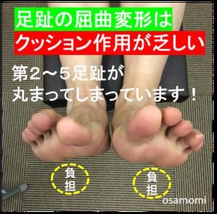 中足骨頭痛の改善は、昭島市のオサモミ整体院。拝島駅から無料送迎サービス。