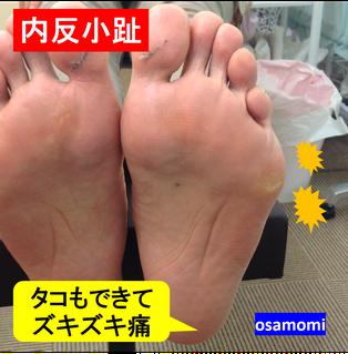 内反小趾、タコ魚の目は、昭島市のオサモミ整体院。