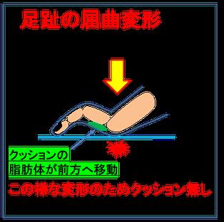 中足骨頭痛は昭島市のオサモミ整体院。拝島駅から無料送迎サービス。