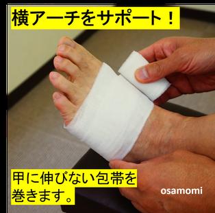 横アーチサポート!内反小指は昭島市のオサモミ整体院。