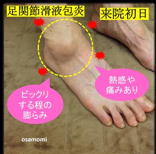 オサモミ式整体 足関節滑液包炎